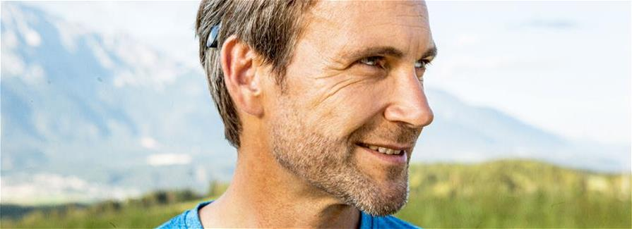 Bone conduction implant systems